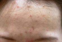 img_acne_case03[1]